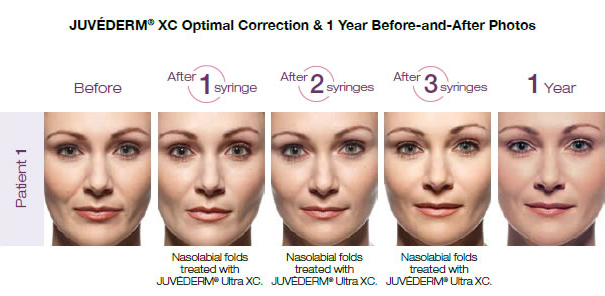 juvederm-before-and-after-skinandallergycenter