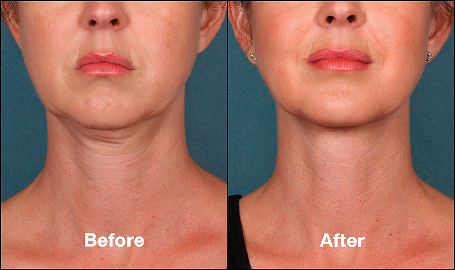 kybella-before-and-after-skinandallergycenter