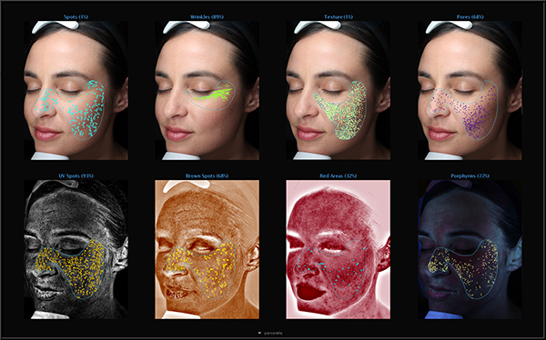 VISIA® Complexion Analysis   Skin & Allergy Center in Tennessee